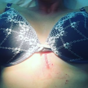 Skin Cancer Scare - www.loveniamh.com
